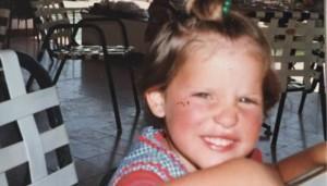 Childhood Memories – Sunburned